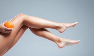 Липосакция ног: коленей, голени, как уменьшают икры, фото до и после