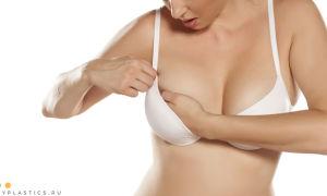 Капсулярная контрактура после маммопластики: фото, признаки, лечение