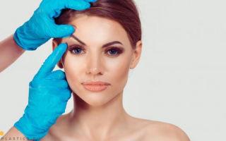Кантопексия: что это такое, фото до и после, как проводят операцию