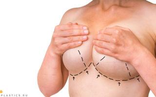 Подтяжка груди (мастопексия): как делают, фото до и после коррекции