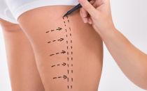 Липосакция бёдер: операция как убрать жир с ляшек, ушки на бедрах, галифе