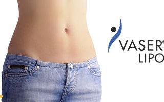 Васер липосакция (VASER lipo): как делают VASER липосакцию, фото до и после
