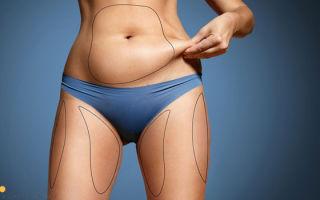 Последствия липосакции, осложнения: серома, гематомы, фото