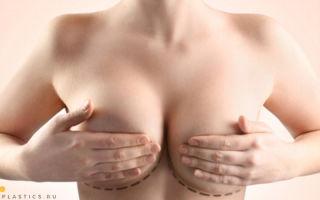 Якорная подтяжка грудных желез (Т-образная подтяжка груди): фото, как делают