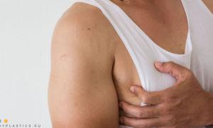 Как убрать жир с грудных мышц мужчине: что делать, как уменьшить грудь