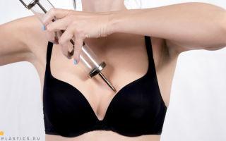 Увеличение груди гиалуроновой кислотой: филлеры, инъекции, уколы в грудь