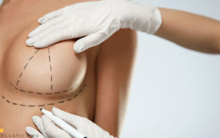 Подтяжка грудных желез без имплантов: фото до и после, методы, как делают
