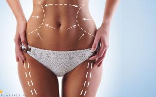 Радиочастотная липосакция: Body Tite, что такое RF липосакция