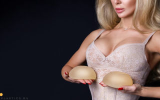Подтяжка груди с имплантами (мастопексия): фото, как делают увеличение с подтяжкой