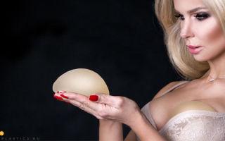 Круглые импланты: фото до и после, увеличение груди круглыми имплантами