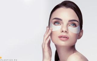 Грыжи под глазами: как избавиться без операции от мешков, грыж верхних и нижних век