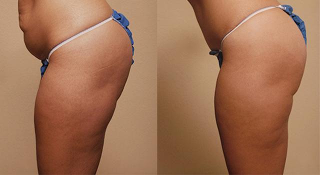 фото женщины до и после липосакции бедер и живота