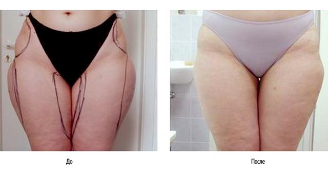 фото женщины до и после липосакции