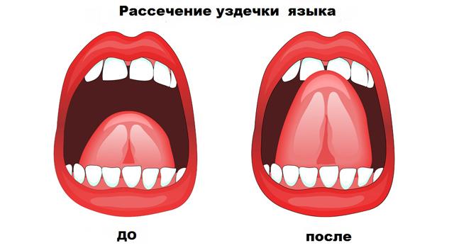 Укороченная уздечка языка