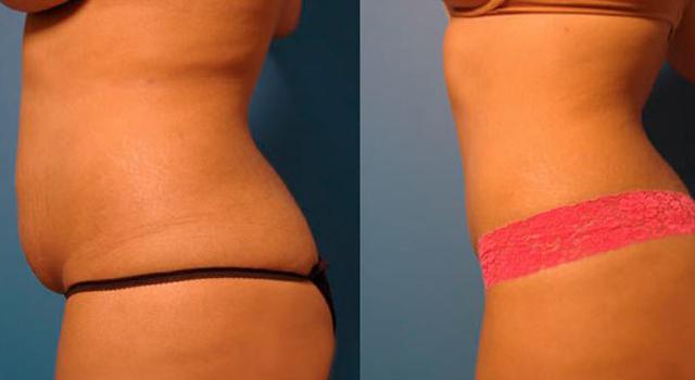 женщина до и после липосакции