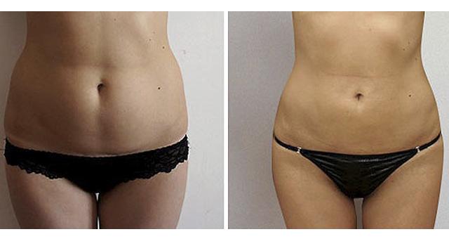 Липоскульптура фото до и после