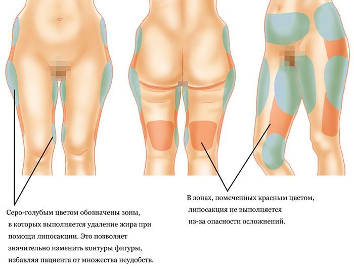 зоны проведения операции по откачке жира