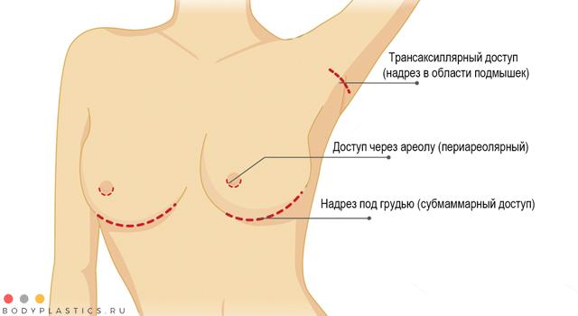 Методы маммопластики