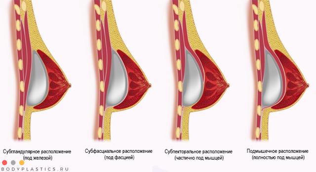 Куда вставляют импланты молочной железы