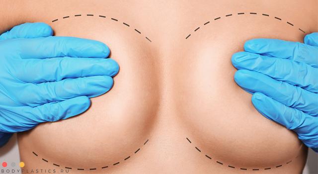 показания к маммопластике