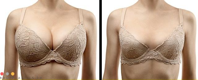 Маммопластика фото до и после