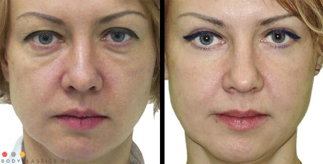 Фото до и после блефаропластики нижних и верхних век