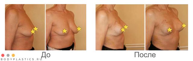 Подтяжка груди без имплантов: фото до и после