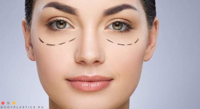 Какие есть способы блефаропластики грыжи под глазами