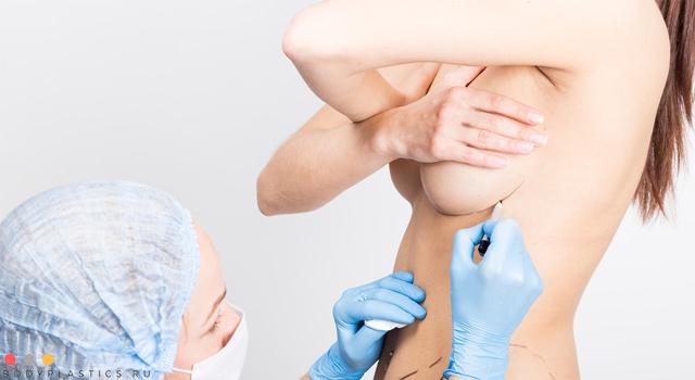 Виды коррекции грудных желез