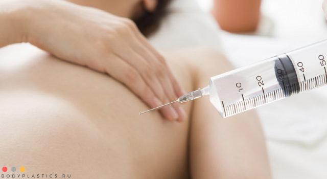 инъекционное увеличение молочной железы