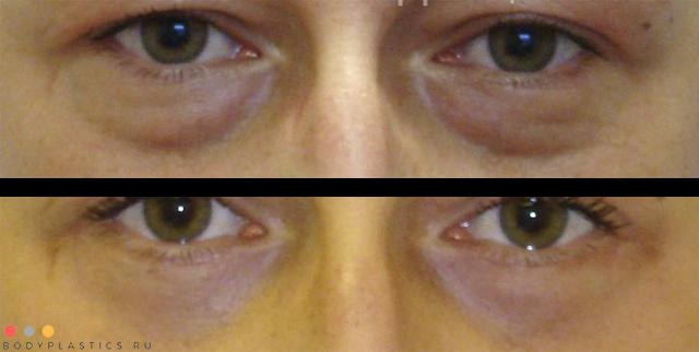 Блефаропластика нижних век: фото до и после