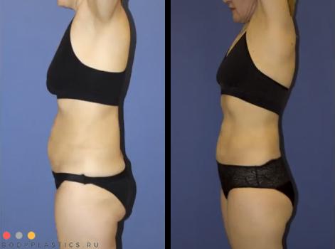 VASER липосакция: фото до и после