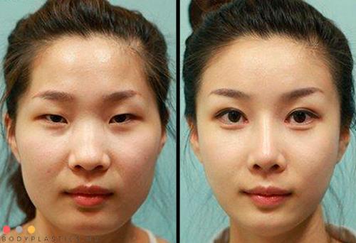 Фото до и после проведения блефаропластики на азиатские глаза