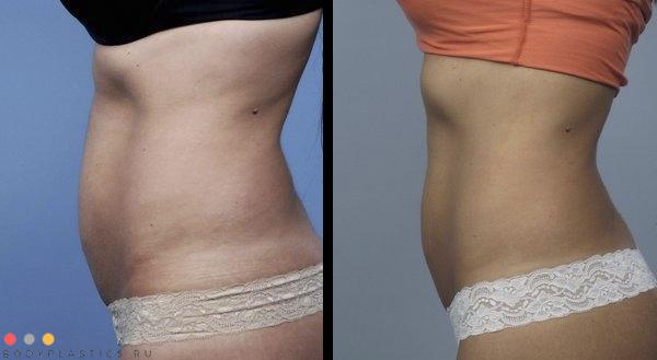 Радиочастотная липосакция Body Tite: фото до и после