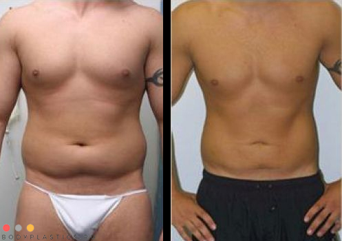 Липосакция у мужчин: фото до и после