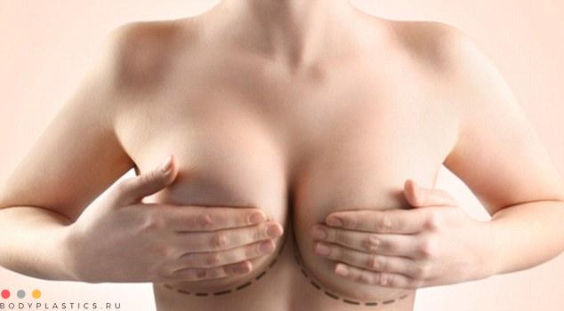 Якорная подтяжка грудных желез