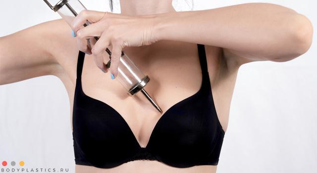 Увеличение грудных желез гиалуроновой кислотой